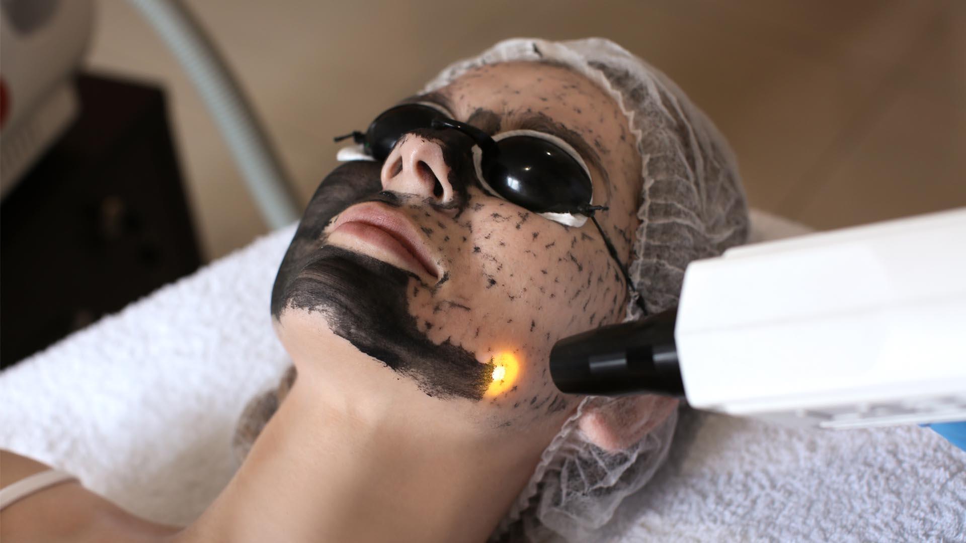 Karbon Peeling ile Güzelliğinize Güzellik Katın
