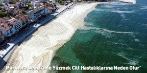 'Marmara Denizi'nde Yüzmek Cilt Hastalıklarına Neden Olur'